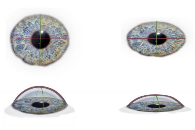 C'est quoi l'astigmatisme, être astigmate